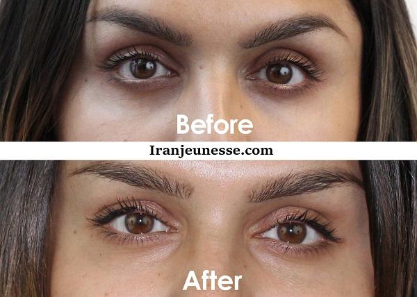 درمان-گودی-زیر-چشم