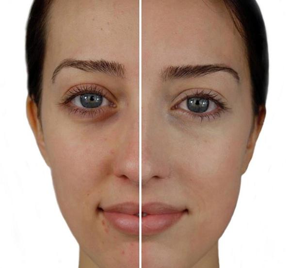 روشن کردن پوست